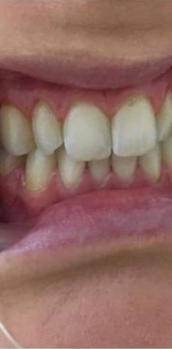 tanden-bleken1306EFA96-5C4A-CD80-BA54-CC1B41493278.jpg